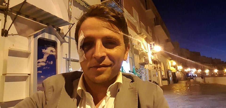 Ponza / Aggressione a Danilo D'Amico, la minoranza chiede incontro con il Prefetto